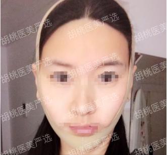 http://hoootao-v2.oss-cn-beijing.aliyuncs.com/yanxuan/comment/Wm4nDtpKow.png