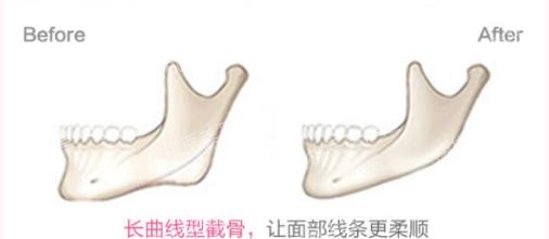 http://hoootao-v2.oss-cn-beijing.aliyuncs.com/yanxuan/comment/pZ26e9A8bm.png