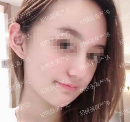 http://hoootao-v2.oss-cn-beijing.aliyuncs.com/yanxuan/comment/vPZ3zLbLAp.png