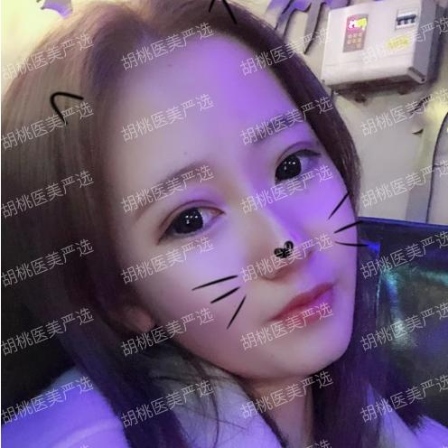 http://hoootao-v2.oss-cn-beijing.aliyuncs.com/yanxuan/comment/ytQn7VDkL8.png